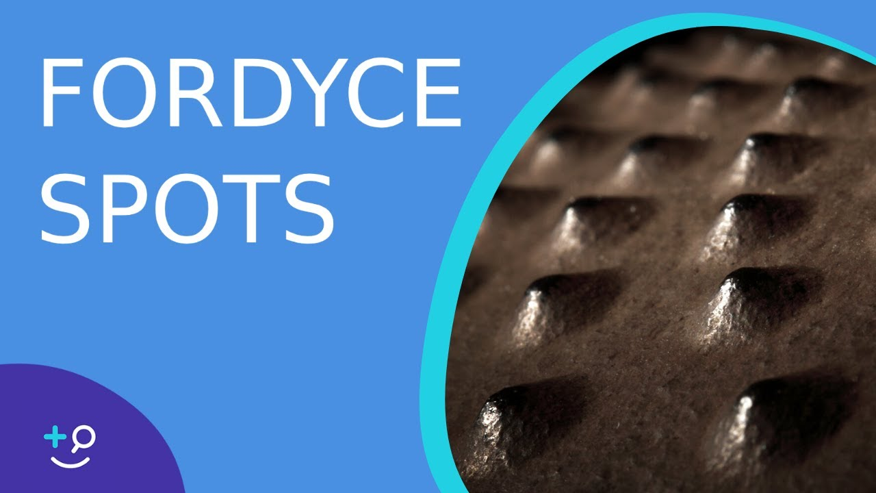 Fordyce Spots - American Osteopathic College of Dermatology