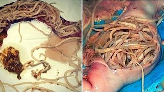 paraziti organisms cancer of abdominal lymph nodes