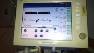 Airway Pressure Release Ventilation - APRV