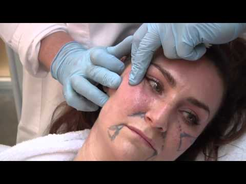 Restylane Fullface @ Atelier Restylane by Dr Berne