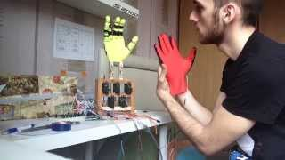 Arduino Robotic Hand Test 1 ( 3 fingers ) - Robotik El Deneme 1 ( 3 parmak )