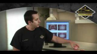 Burgess Center  |  Invisalign & Power Braces Thumbnail