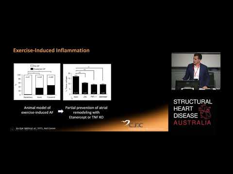 Atrial fibrillation in Athletes Dr Adrian Elliott
