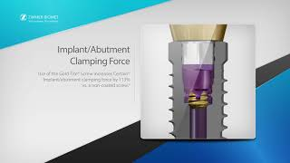 Biomet 3i T3® Implants