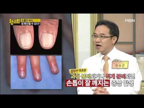 손톱 상태를 보고 몸의 질병을 알 수 있다?
