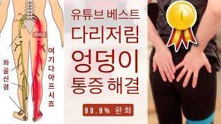 허리통증, 엉덩이와 다리 저림이 온다면  | 이상근 증후군 자가진단법과 매일 하면 좋아지는 통증완화 스트레칭 | PIRIFORMIS SYNDROME