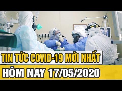 Tin tức dịch Covid 19 mới nhất 17/5/2020 | Hơn 1/3 bệnh nhân COVID-19 bị hư thận