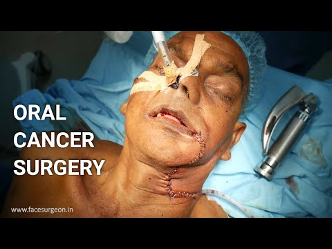 Oral Cancer Removal Surgery with Before and After Results -  Dr. Sunil Richardson