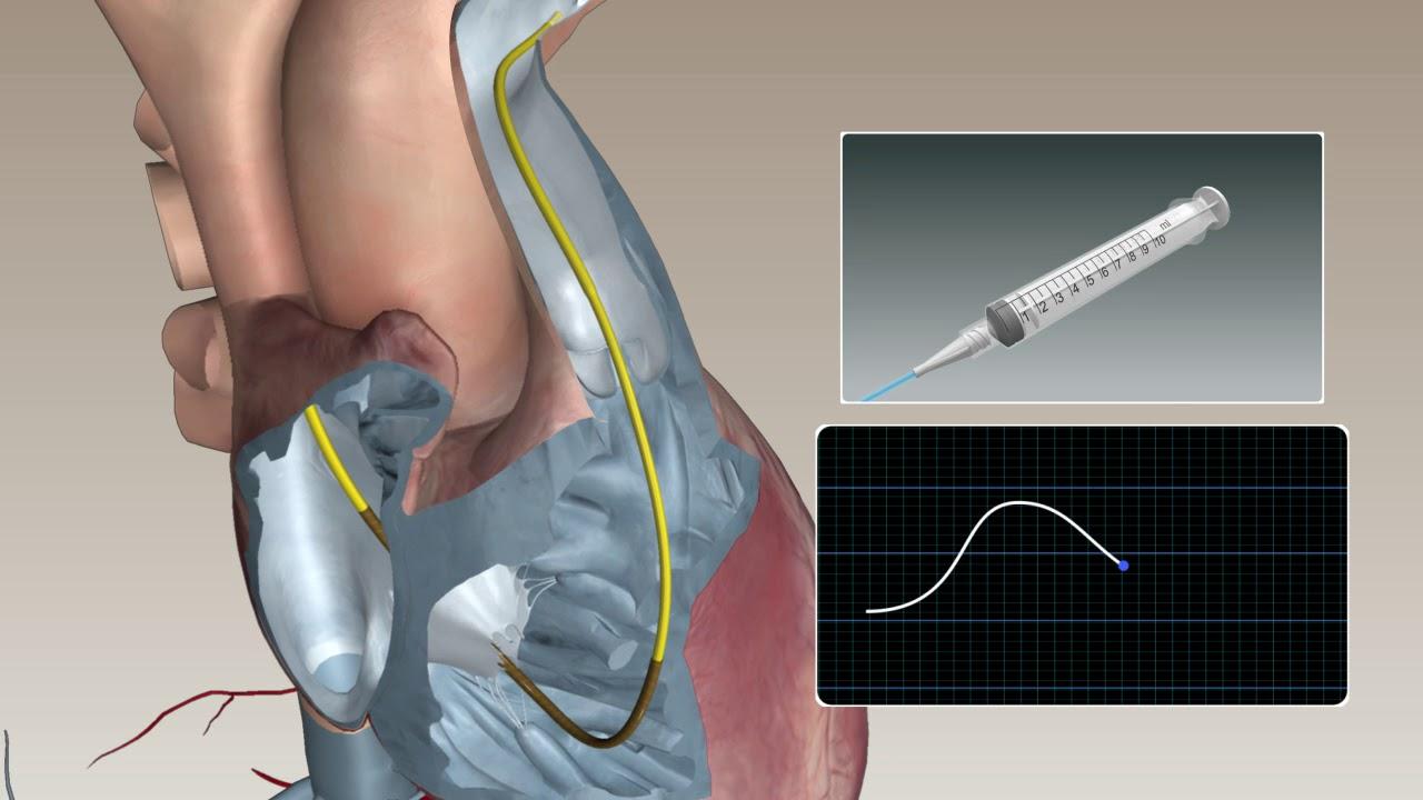 Swan-ganz Catheter - Bolus Cardiac Output