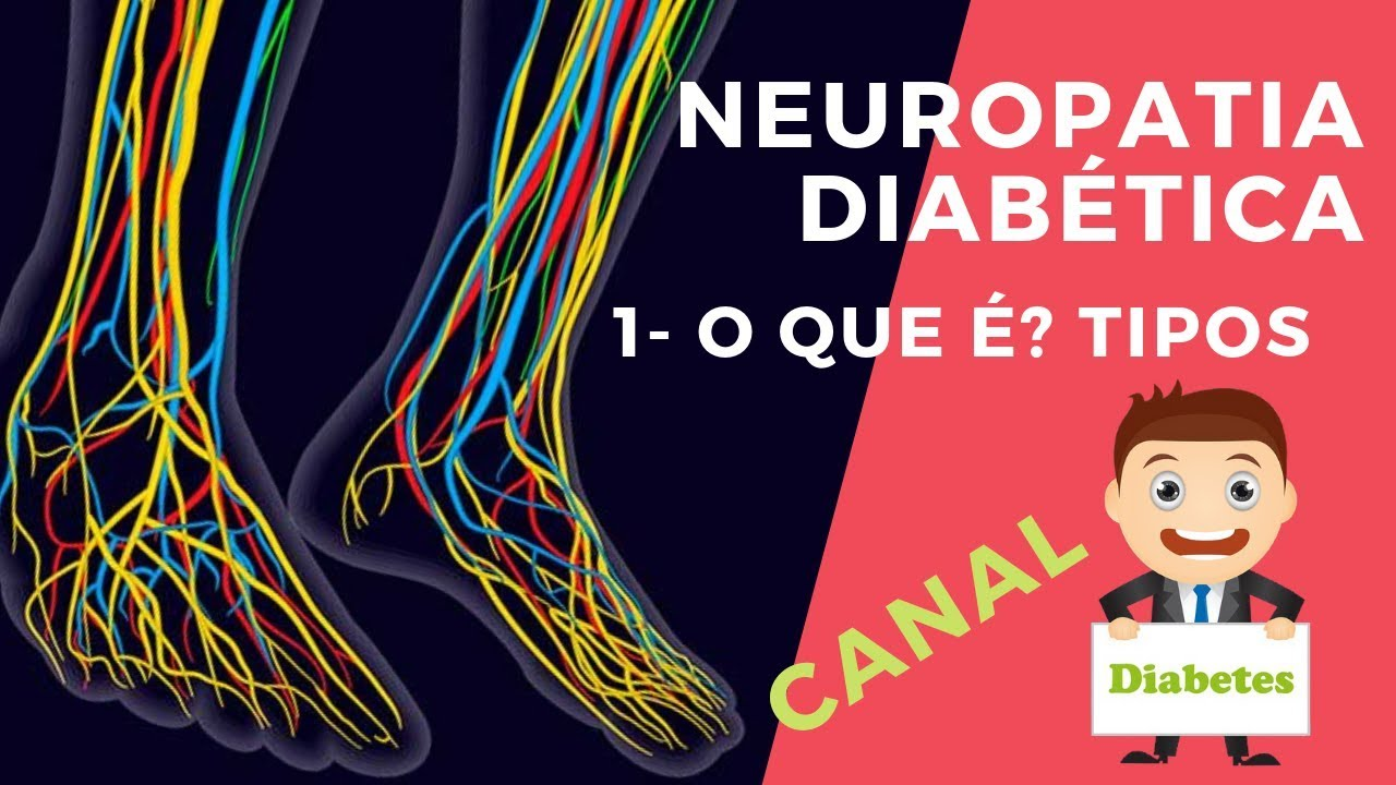 sintomas de neuropatia mãos