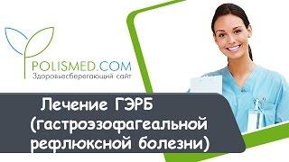Лечение ГЭРБ (гастроэзофагеальной рефлюксной болезни)