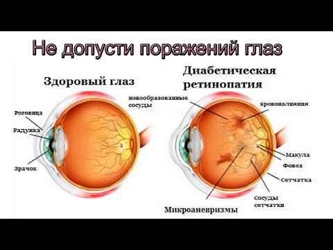 При сахарном диабете упало зрение что делать