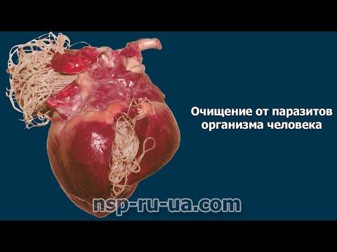 лечение глистов содой и чесноком