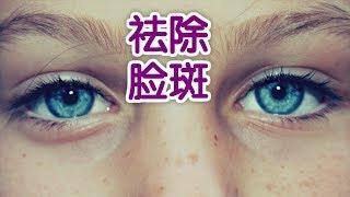 如何让你脸上的斑扫光光