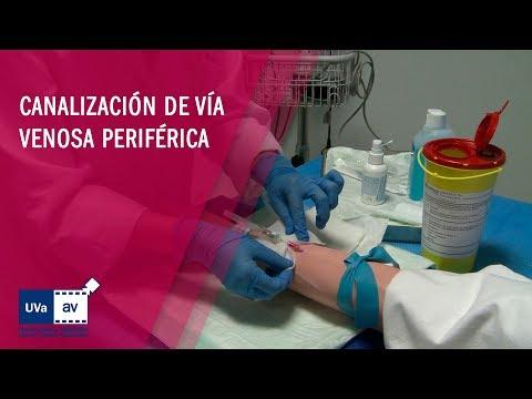 Canalización Venosa Periféricaиз YouTube · Длительность: 2 мин9 с