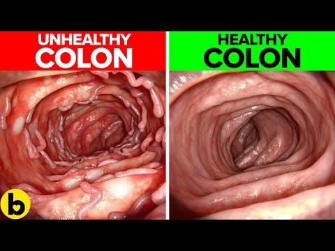 14-effective-ways-you-can-maintain-a-healthy-colon