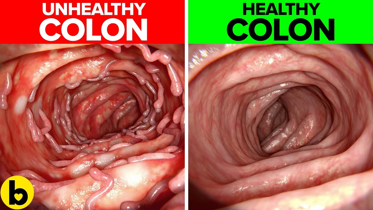 Healthy Colon Here's What You Need To Know All About ~ COLON