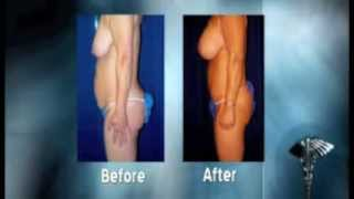 Abdominoplasty - Before and After Plastic Surgery Thumbnail