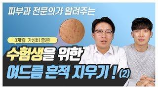 여드름 흉터 치료, 이 영상으로 정리한다! (Feat.…