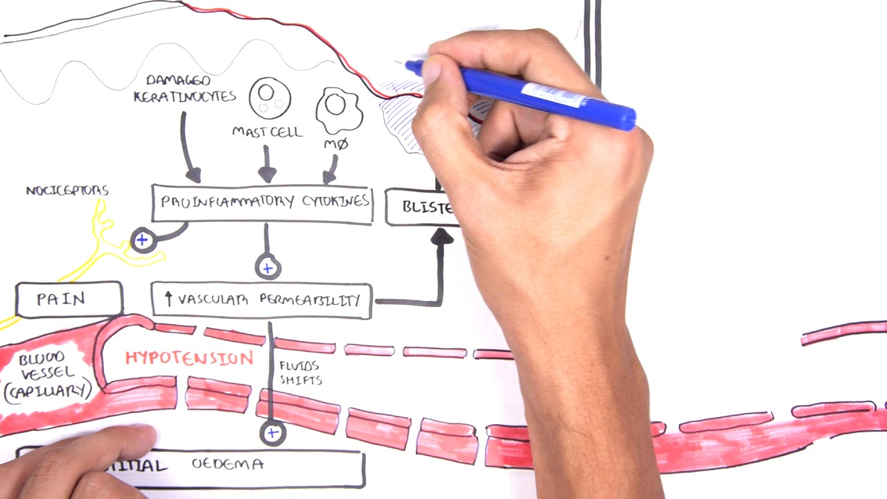 Download Burns (DETAILED) Overview - Types, Pathophysiology, TBSA