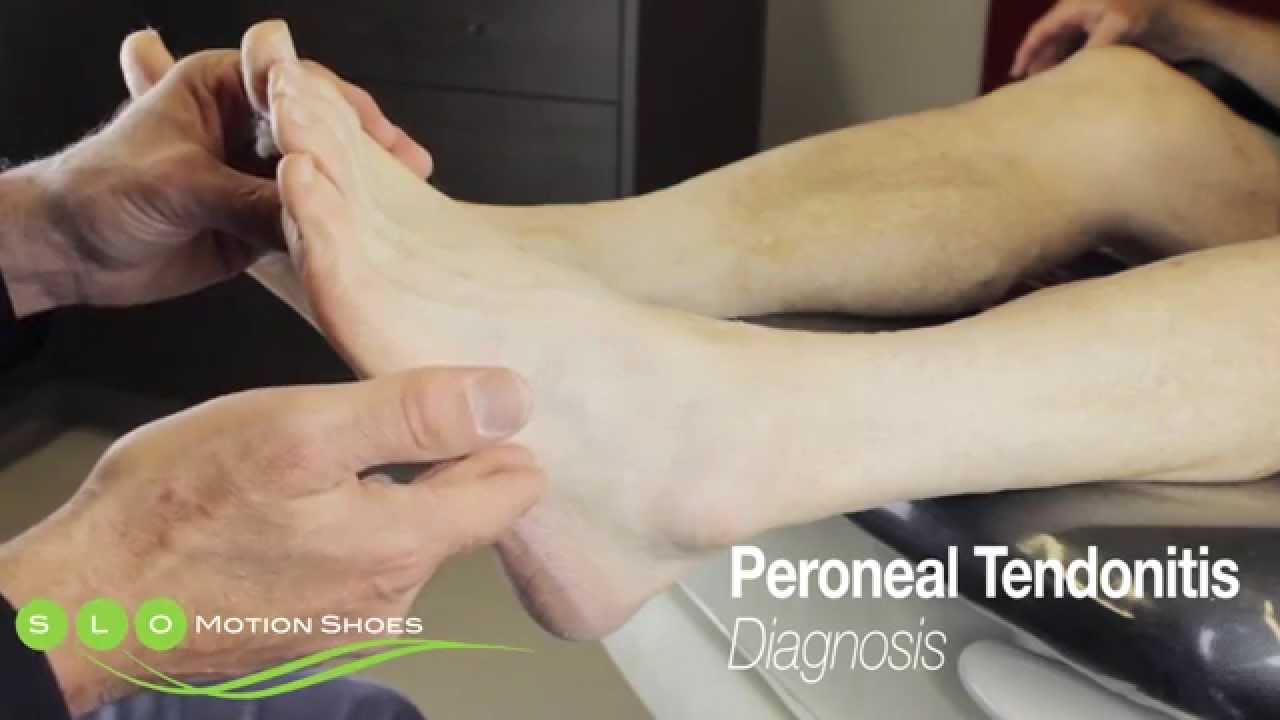 Peroneal Tendonitis Causes Diagnosis And Treatment Youtube