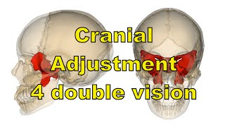 Relief for Double vision with unique cranial adjustment. Quick results for this patient