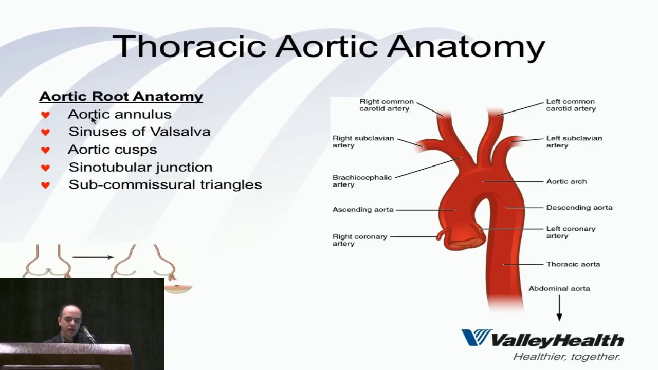 Thoracic Aortic Surgery: State Of The Art Update In 2018 - YouTube