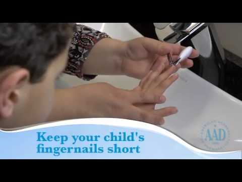 Children and Eczema (Atopic Dermatitis): Skin Care Tips