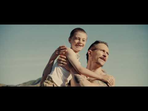 S K I N Teaser Trailer #2