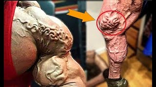 Bodybuilder Who Took Vascularity Too an EXTREME LEVEL !