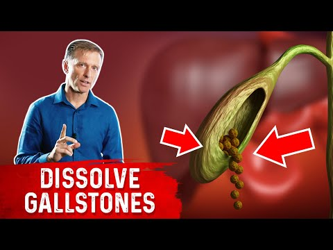 Do This to Help Dissolve Gallstones