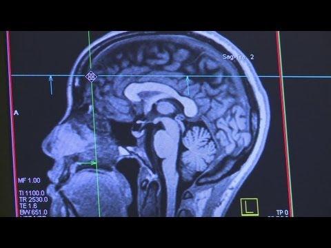 UNM brain study probes criminal pattern