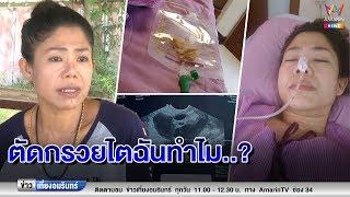 ข่าวเที่ยงอมรินทร์-ร้อง-หมอผ่าตัดรังไข่-พลาดตัดกรวยไต-200662