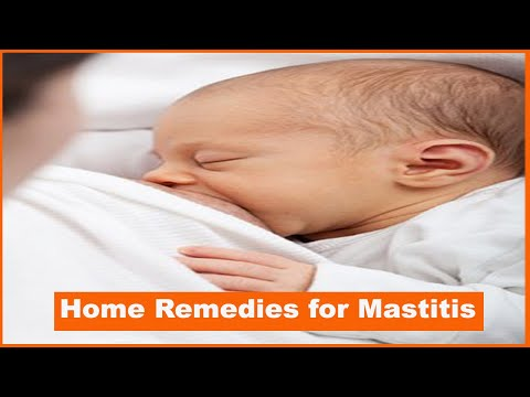 home-remedies-for-mastitis