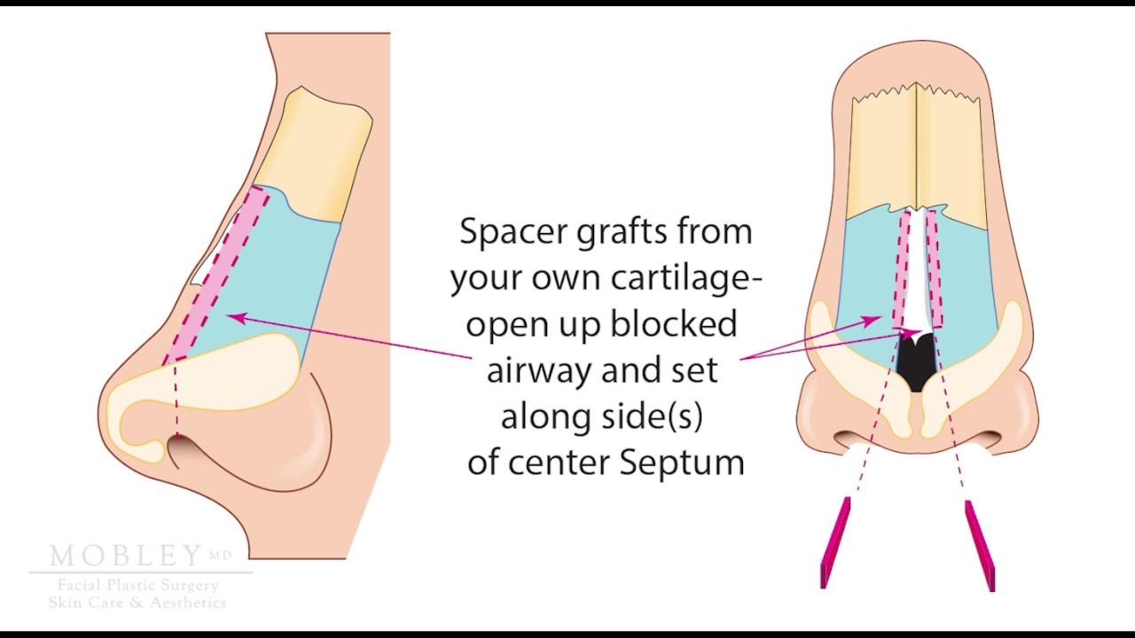 Understanding Nasal Valve Surgery Youtube