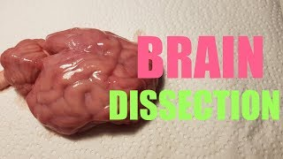 Brain Dissection