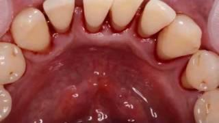Профессиональная гигиена полости рта [professional teeth hygene](https://instagram.com/alex_khaldin/ http://vk.com/alexander.khaldin https://www.facebook.com/alexander.khaldin., 2012-02-13T18:12:02.000Z)