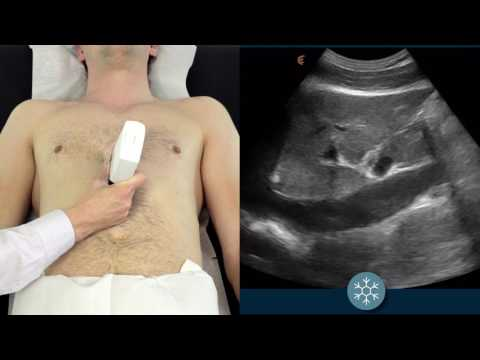 How to assess the IVC for volume status using ultrasound