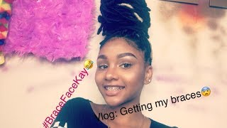 vlog1 getting my bracesdo they really hurt?
