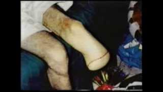 Repeat youtube video SMOKING-Gangrene-Amputation