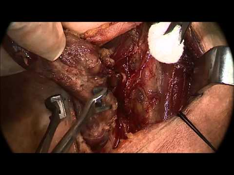 Total Thyroidectomy for Papillary Carcinoma