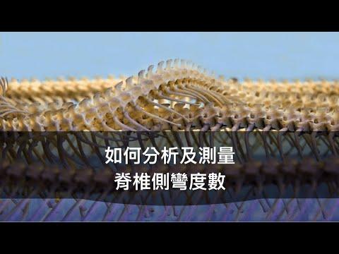閻曉華說脊椎側彎第二章  如何分析及測量脊椎側彎度數