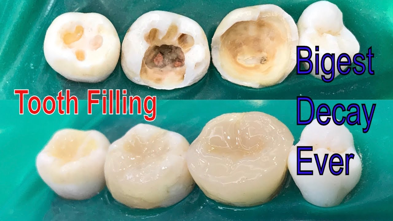 Tooth Filling | Tooth Decay Filling With Composite Dental Filling | Resina Composta  Dente Posterior