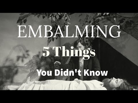 5 Things You Didn