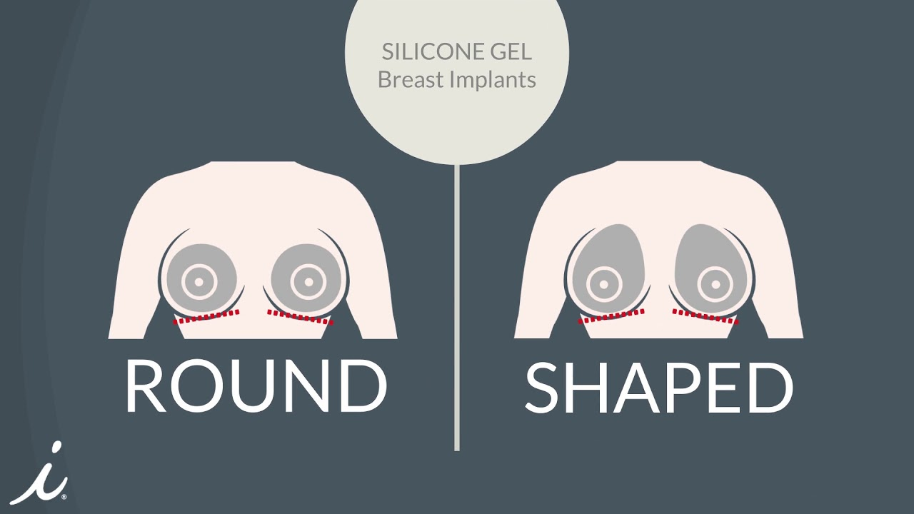 Types Of Breast Implants A Quick Primer Youtube