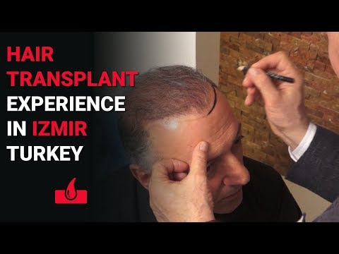 Hair Transplant Experience in Izmir  -  Why I Chose  Izmir for Hair Surgery?