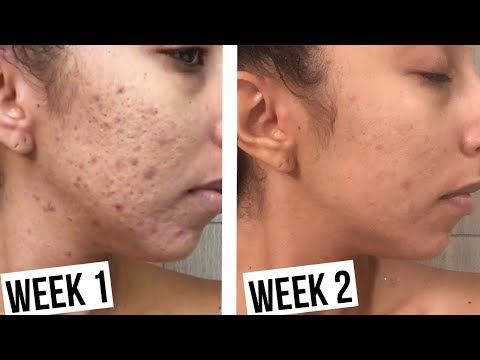 How To Clear Acne In 2 Weeks! Makari De Suisse Skincare!  Bi