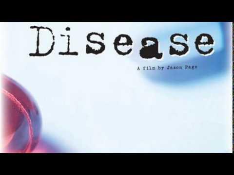 Newton's Disease Full Movie