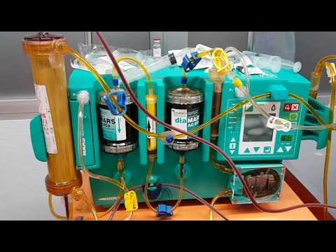 ASITENCIA HEPÁTICA MARS (molecular adsorbent recirculating system)
