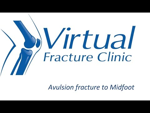 Avulsion Fracture to midfoot